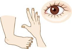飯内科クリニック ボツリヌス療法 イメージ